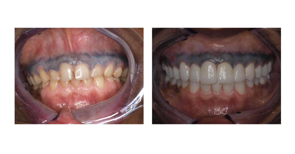 Corone estetiche dentali