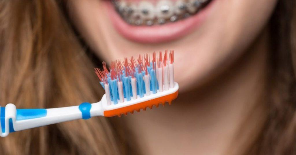 Spazzolino ortodontico